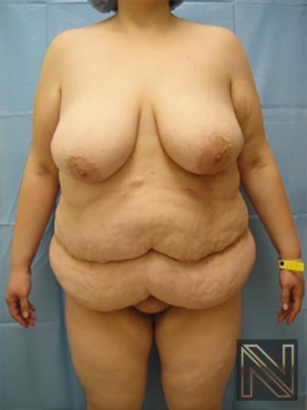 Abdominoplasty: Patient 15 - Before Image 1