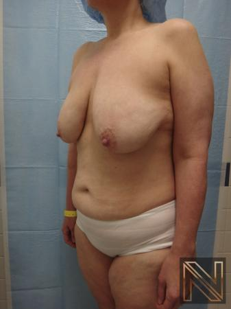 Breast Lift: Patient 3 - Before Image 3
