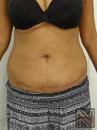 Mini Tummy Tuck: Patient 4 - After Image 1