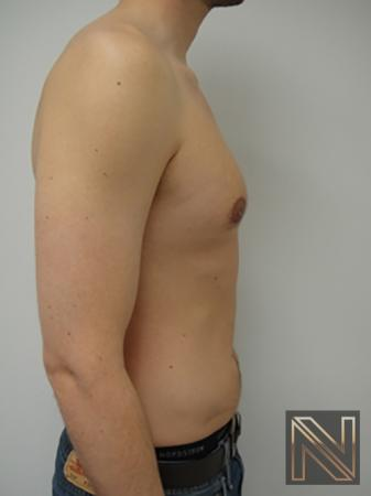 Gynecomastia: Patient 4 - After Image 5