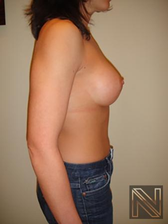 Breast Augmentation: Patient 11 - After Image 5