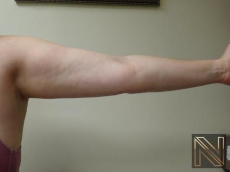 Liposuction: Patient 24 - After Image 3