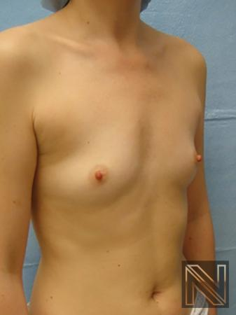 Breast Augmentation: Patient 5 - Before 3