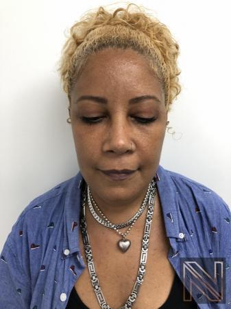 Blepharoplasty: Patient 1 - After 2