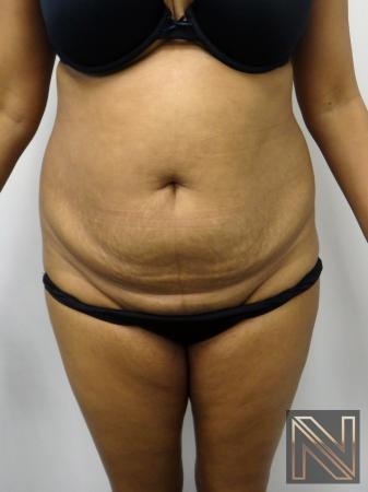 Mini Tummy Tuck: Patient 4 - Before Image 1