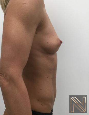 Breast Augmentation: Patient 3 - Before and After Image 3