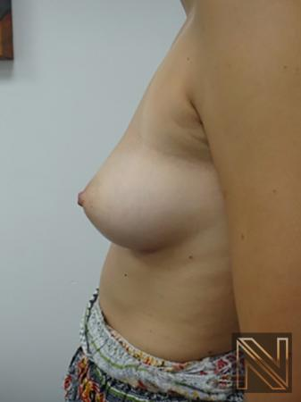 Inverted Nipple Surgery: Patient 3 - After 4