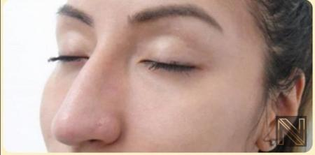 Fillers: Patient 11 - After 1