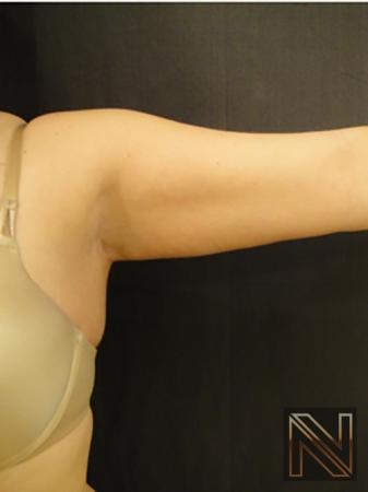 Liposuction: Patient 25 - After 3