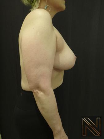 Breast Lift: Patient 3 - After Image 5