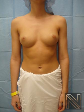 Breast Augmentation: Patient 6 - Before Image 1
