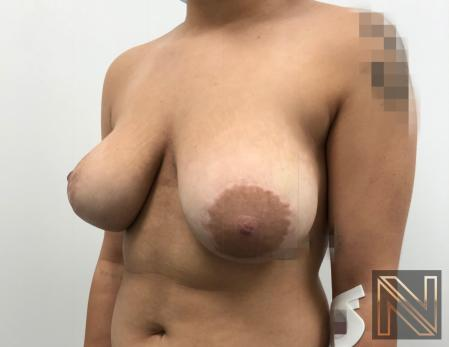 Breast Lift: Patient 17 - Before Image 2