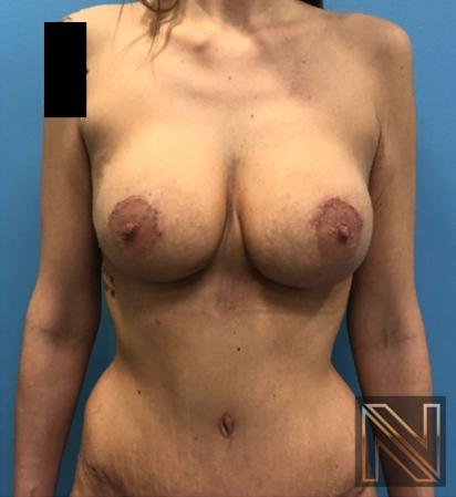 Abdominoplasty: Patient 31 - After Image 1