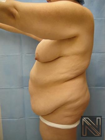 Abdominoplasty: Patient 12 - Before Image 2