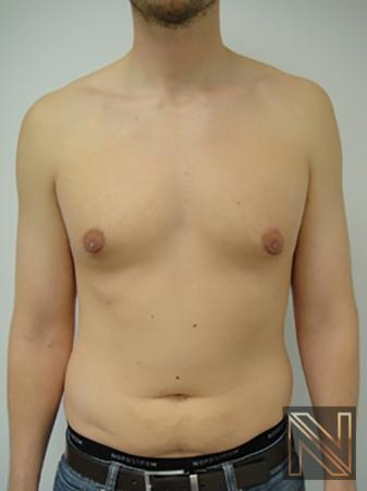 Gynecomastia: Patient 4 - After Image