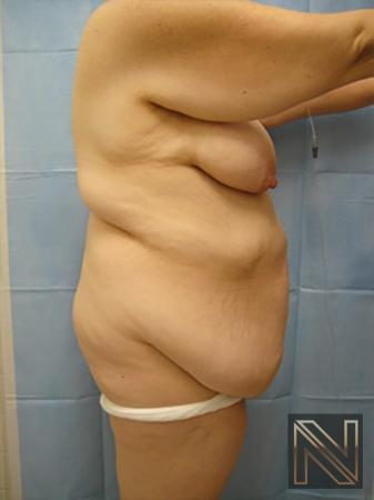 Abdominoplasty: Patient 12 - Before and After Image 3