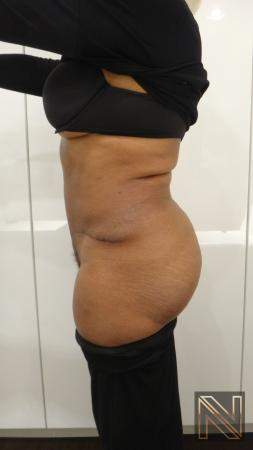 Abdominoplasty: Patient 22 - After Image 2