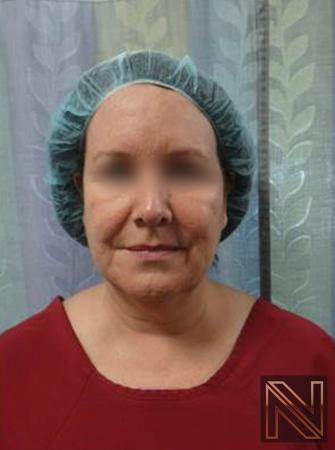 Facelift/Mini Facelift: Patient 4 - Before and After Image 2