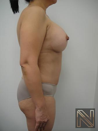 Abdominoplasty: Patient 20 - After 3