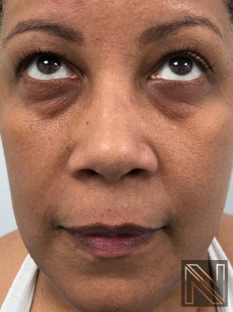 Fractional Resurfacing: Patient 6 - Before Image
