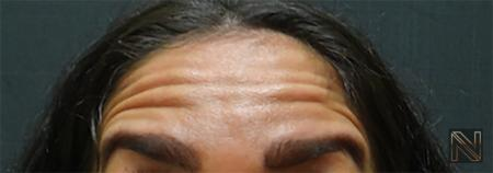 BOTOX® Cosmetic: Patient 3 - Before Image 1