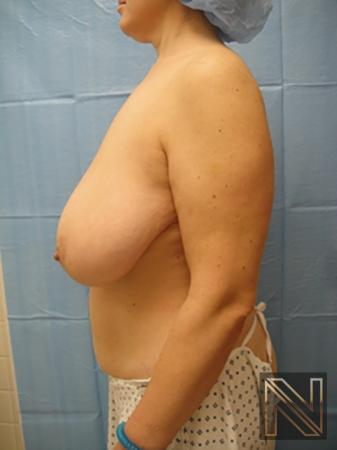 Breast Reduction: Patient 8 - Before Image 4