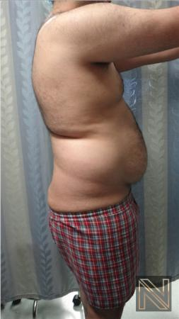 Liposuction: Patient 16 - Before and After Image 3