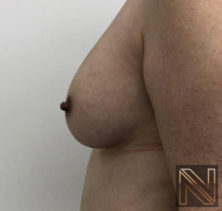 Fat Transfer - Body: Patient 2 - After Image 4