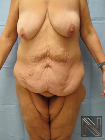 Abdominoplasty: Patient 3 - Before Image