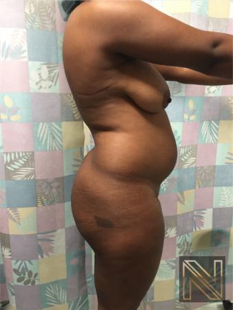 Butt Augmentation: Patient 4 - Before Image 3