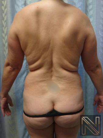 Liposuction: Patient 21 - Before 1