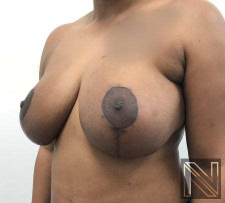 Breast Lift: Patient 14 - After Image 3