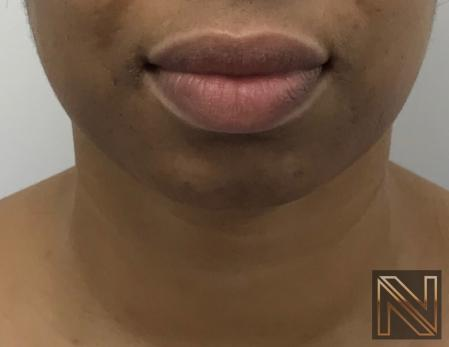 Chin Augmentation: Patient 3 - Before Image 3
