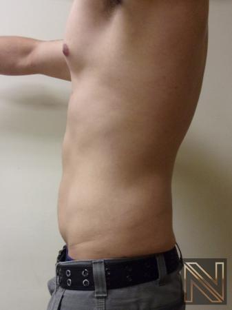 Liposuction: Patient 14 - After 2