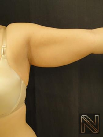 Liposuction: Patient 25 - Before and After 3