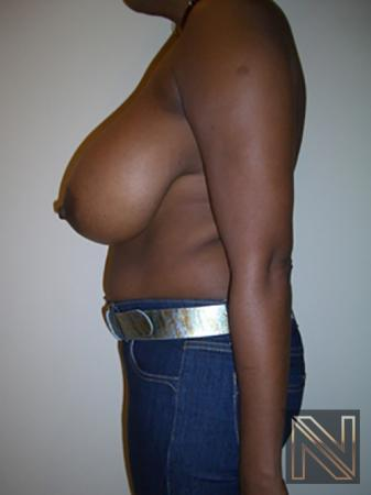 Breast Reduction: Patient 5 - Before Image 4