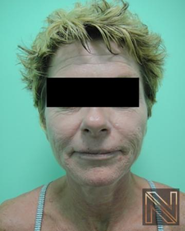 Facelift/Mini Facelift: Patient 10 - Before Image