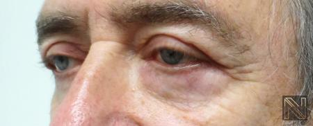 Blepharoplasty: Patient 7 - After Image