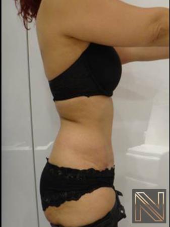 Abdominoplasty: Patient 25 - After Image 2
