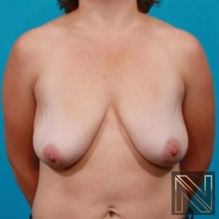 Breast Lift: Patient 12 - Before 1