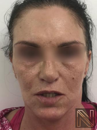 Fractional Resurfacing: Patient 1 - Before and After 3