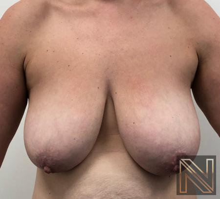 Breast Lift: Patient 16 - Before 1
