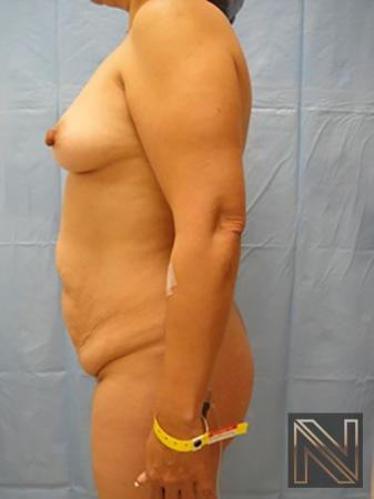 Abdominoplasty: Patient 6 - Before Image 2
