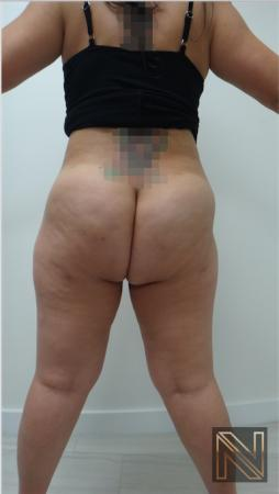 Liposuction: Patient 15 - After Image 4