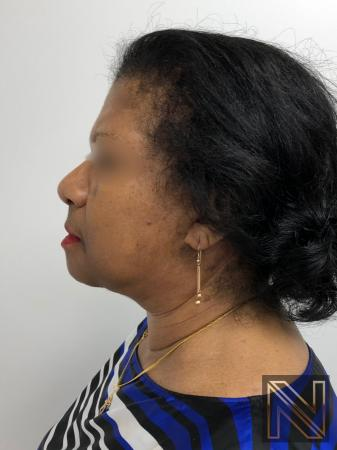 Facelift/Mini Facelift: Patient 7 - After Image