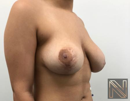 Breast Lift: Patient 17 - Before 3
