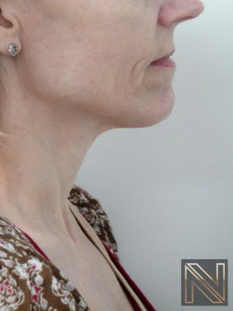 Ultherapy®: Patient 1 - After Image 2