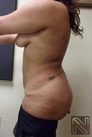 Butt Augmentation: Patient 5 - After Image 2