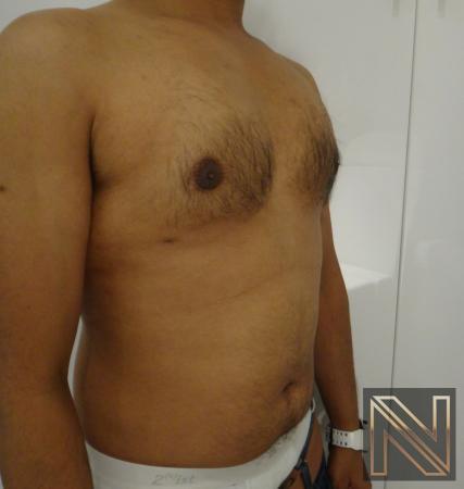 Gynecomastia: Patient 6 - After 3