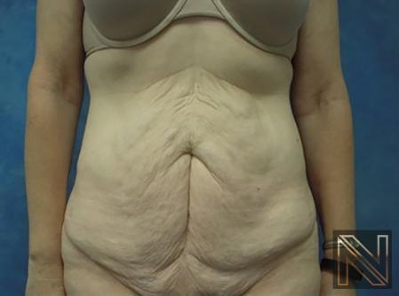 Abdominoplasty: Patient 30 - Before Image 1